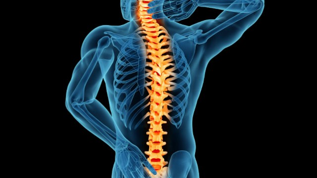 Spinal Stenosis and the Treatment